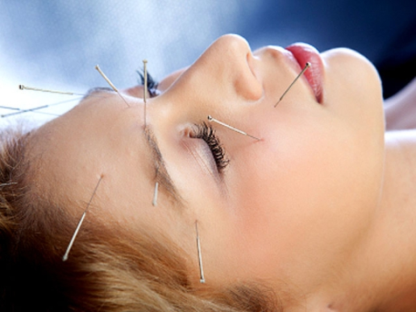 Image result for acupuncture images