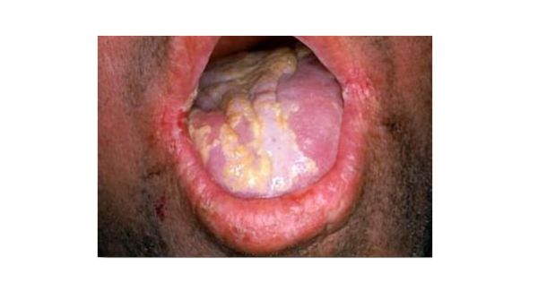 Candida infection