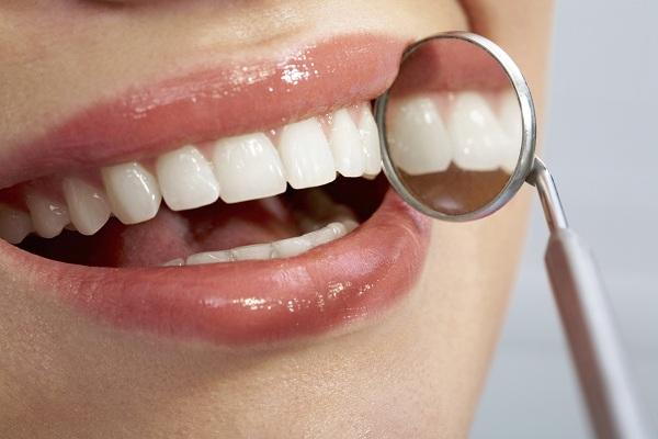 DIY Teeth