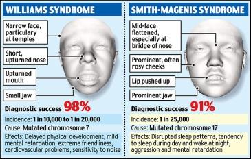facial scans revealing genetic disorders