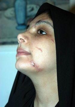 leishmaniasis skin disease 9