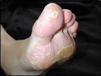 melanoma of foot