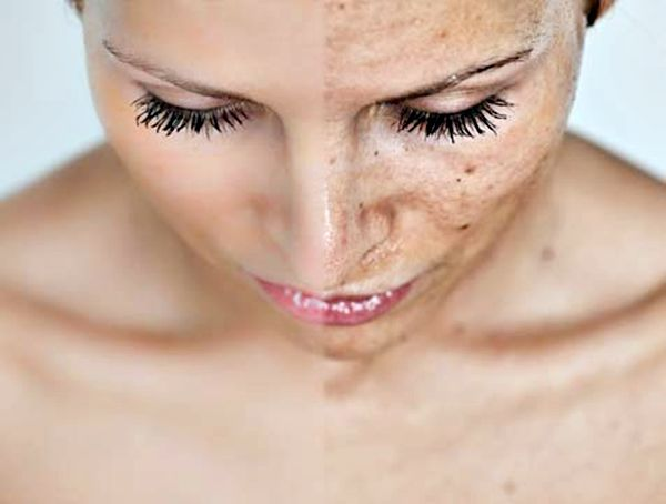 Melasma or dark skin pigmentation: causes and symptoms