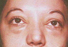 swollen eyes 64