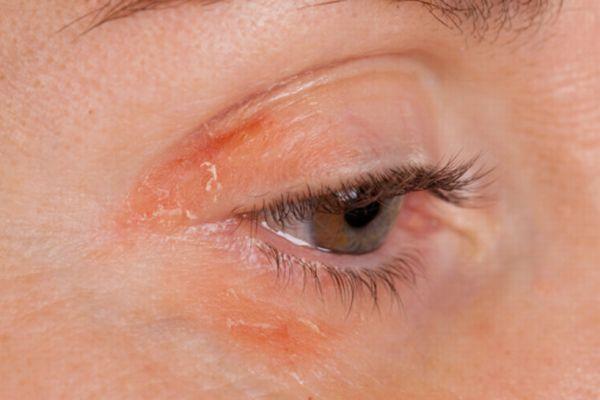 eczema eyelids - photo #41