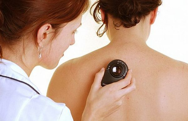 Skin-Cancer-Symptoms-Causes-and-Treatment