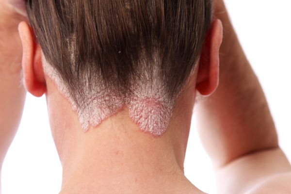 Psoriasis is a chronic skin condition that takes different forms 3