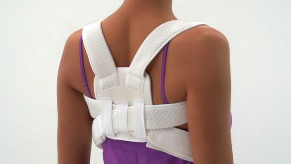 Diagnosing and Treating Scoliosis_2