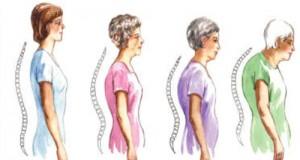 669Osteoporosis
