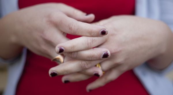 rough overworked hands