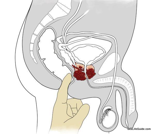 prostate-health-1