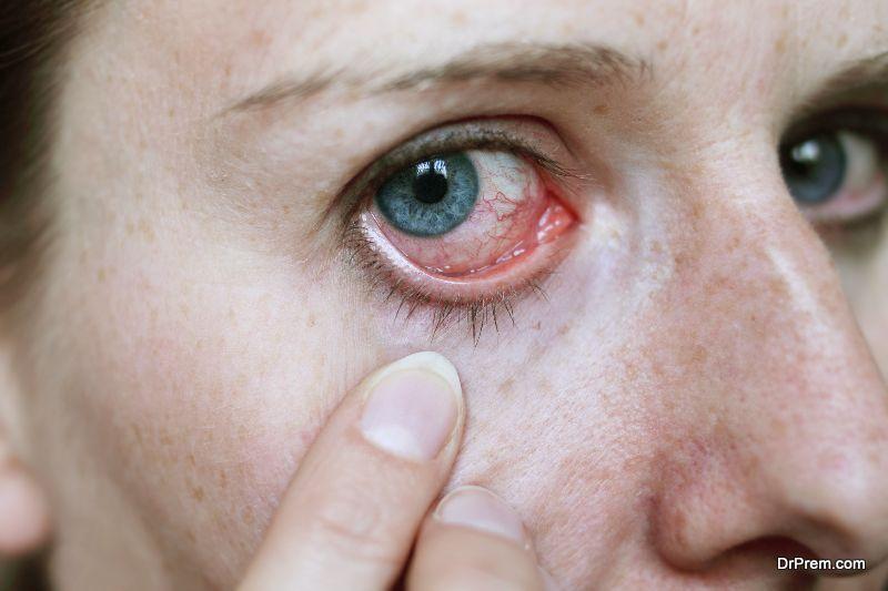 eye-allergies-