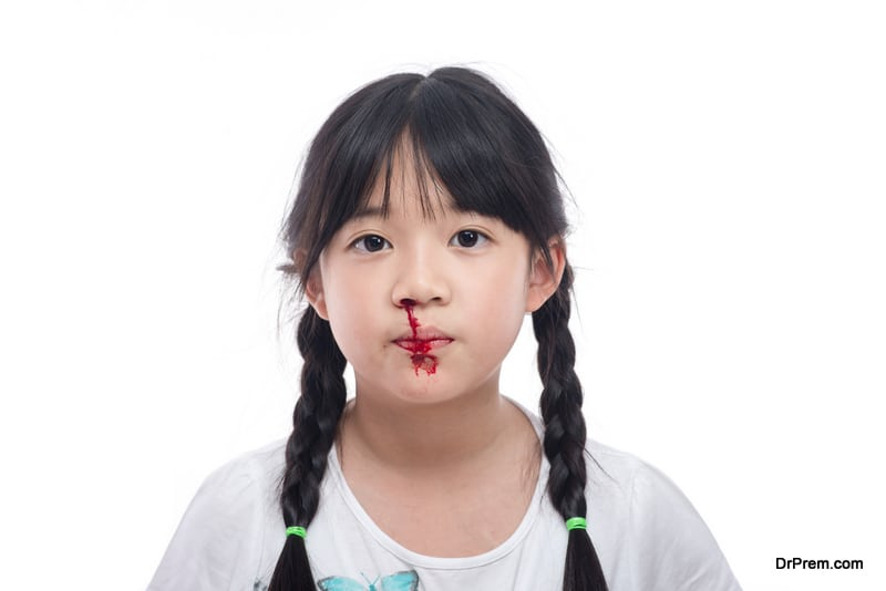 Bleeding-through-nose