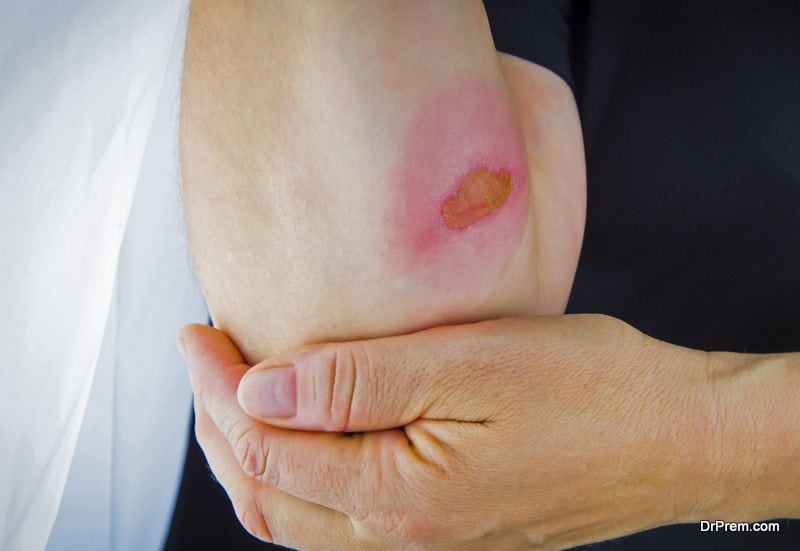 Burns Severity and Treatment
