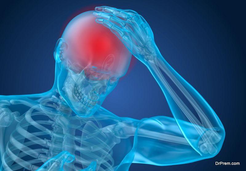 Migraine Causes