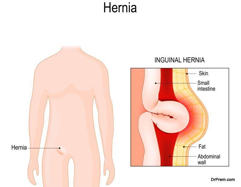 after undergoing an hernia surgery