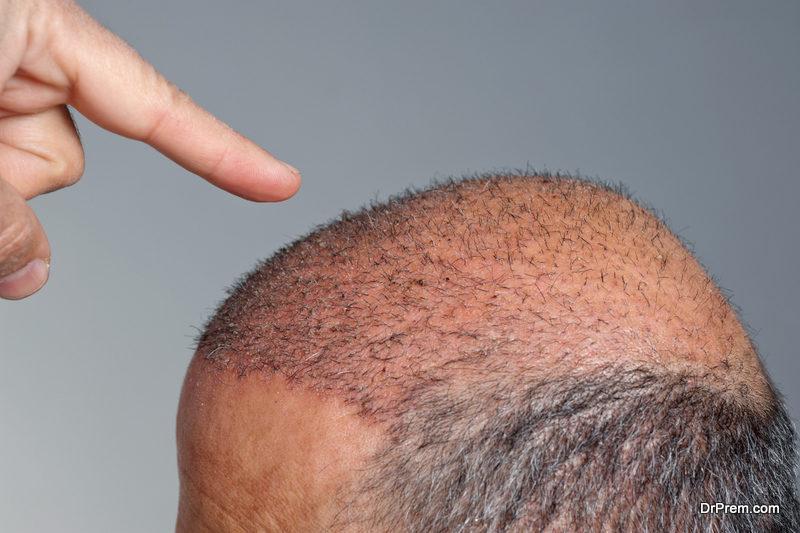 scalp-micro-pigmentation-
