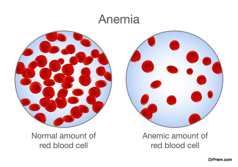 self test for Anemia