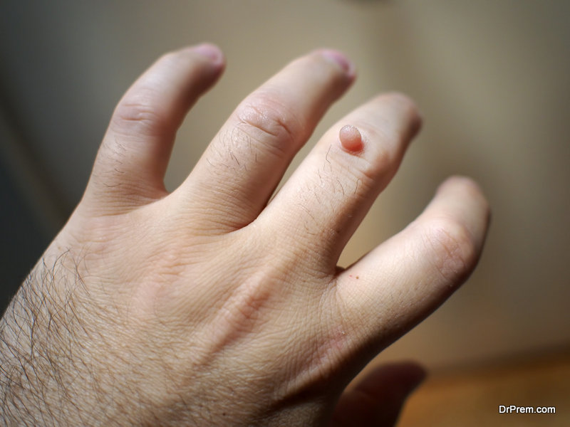 home remedies for removing warts