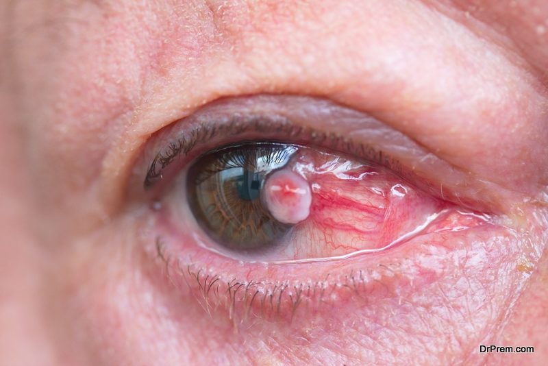 Common Eye Injuries