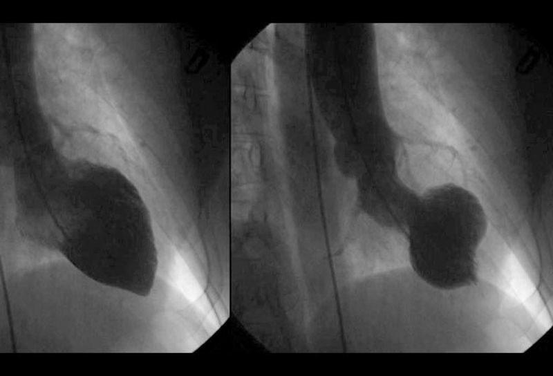 Takotsubo-Cardiomyopathy