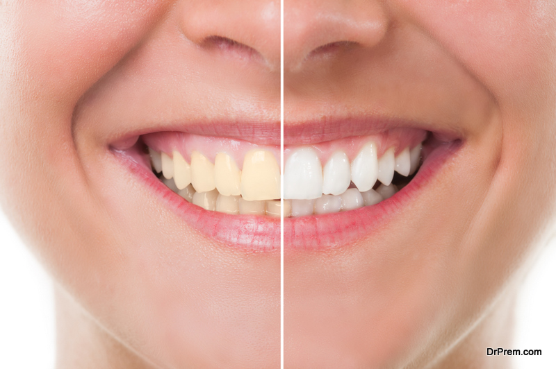 Do's and Don'ts of Whitening your Teeth